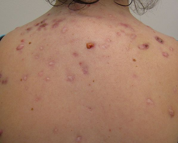 Severe acne on the back