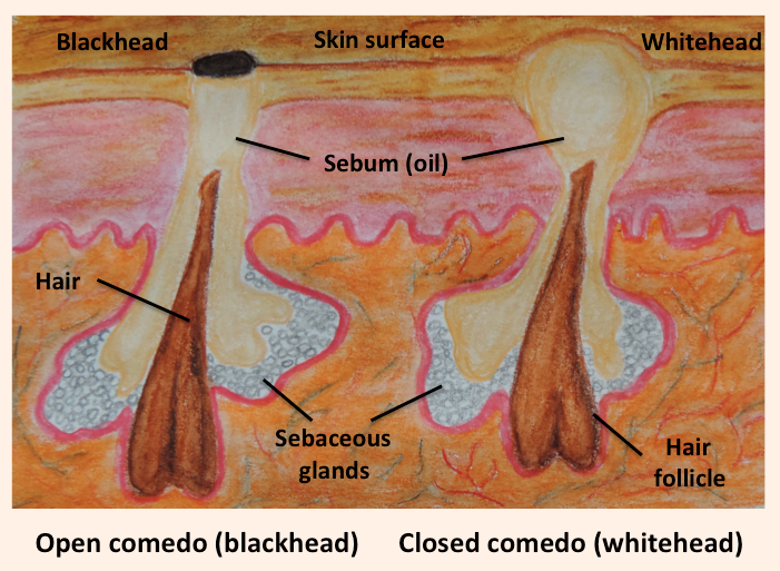 Blackhead and whitehead