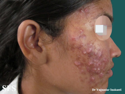 Steroid acne on the face