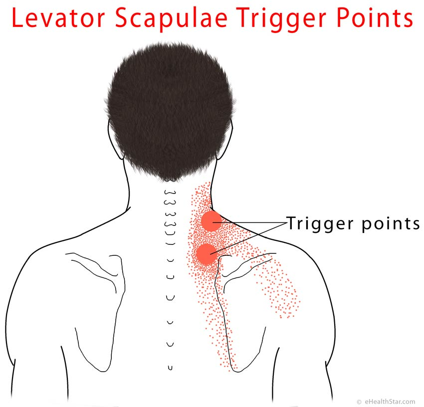 Levator Scapulae Pain Syndrome, Trigger Points, Stretch | eHealthStar