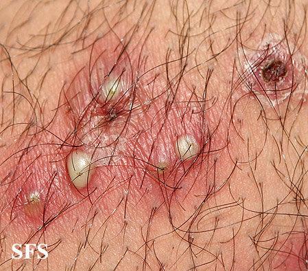 Staphylococcal folliculitis