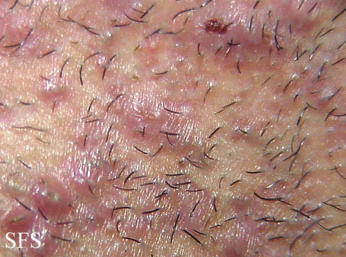 Ingrown hair, close-up look