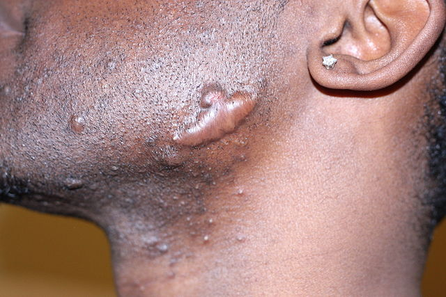 Keloid scar and ingrown hair