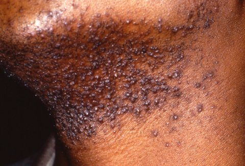 Pseudofolliculitis barbae ingrown hair