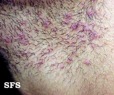 Ingrown hair on the neck