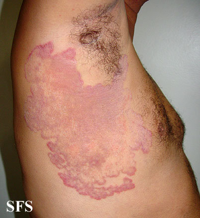 Underarm rash - ringworm