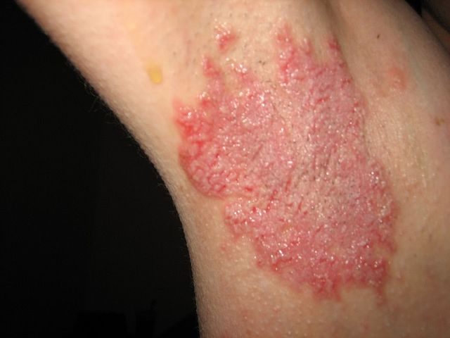 Armpit rash - Hailey-Hailey disease