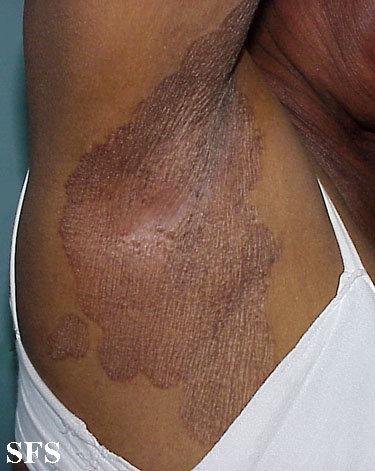 Armpit rash - erythrasma