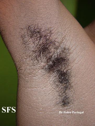 Armpit rash - acanthosis nigra