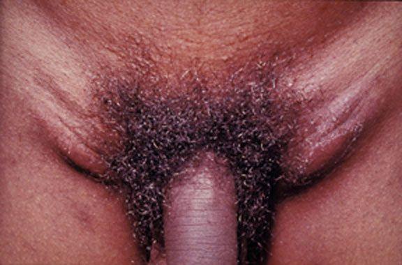 Swollen inguinal lymph nodes