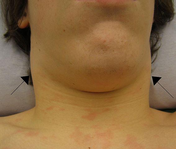 Swollen lymph nodes in the neck