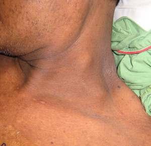 Swollen supraclavicular lymph node
