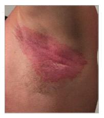 Underarm rash - psoriasis