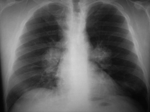 X ray of bilateral hilar lymph node enlargement