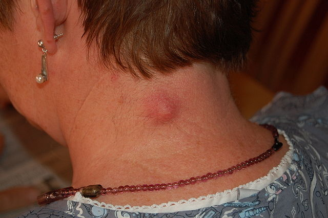 An inflamed epidermoid cyst - red bump at the back of the neck