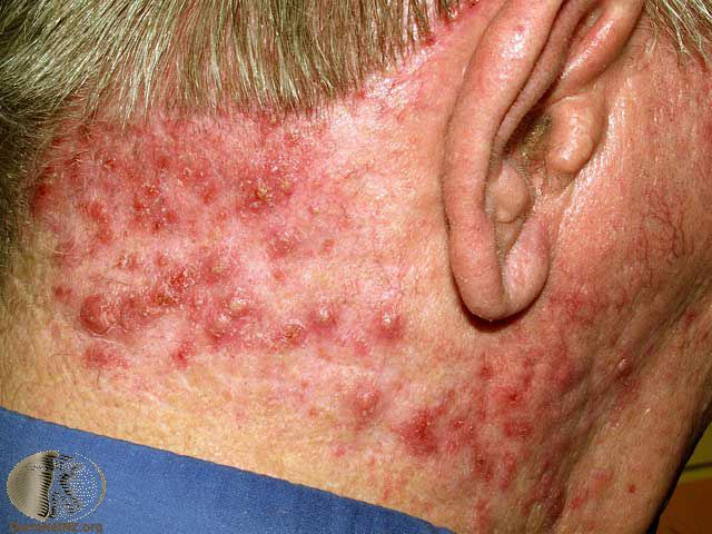 Folliculitis - red bumps at the back of the neck