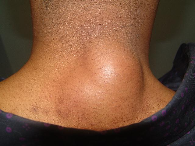 Lipoma a large lump at the back of the neck