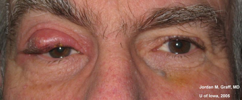 Chalazion on the upper eyelid