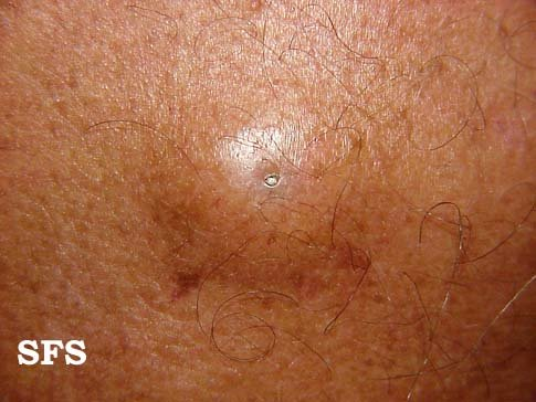 Epidermoid cyst in the skin