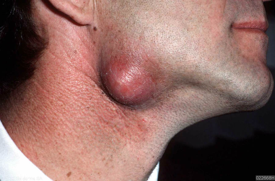 Infected epidermoid cyst below the jaw