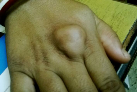 Sebaceous cyst on the back of the hand
