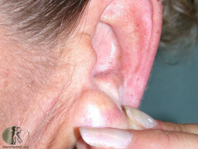 An epidermoid cyst on an earlobe-1