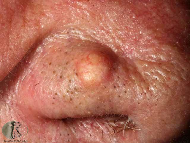 An epidermoid cyst on the eyelid
