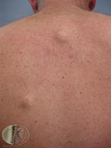 An epidermoid cyst on the back