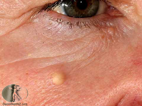 An epidermoid cyst on the face