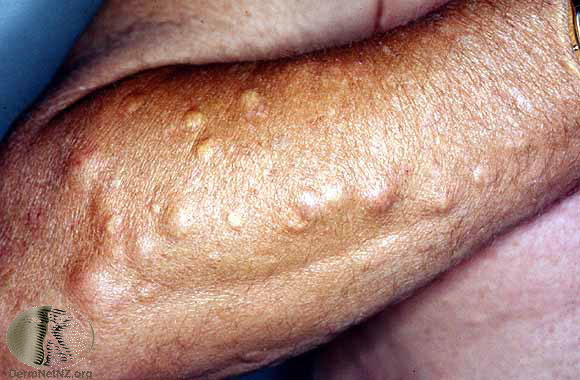 Epidermoid cysts on the arm