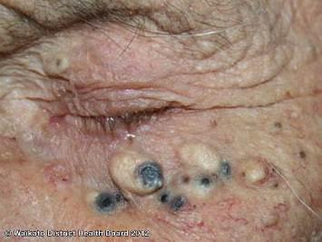 Epidermoid cysts and solar comedones on the face