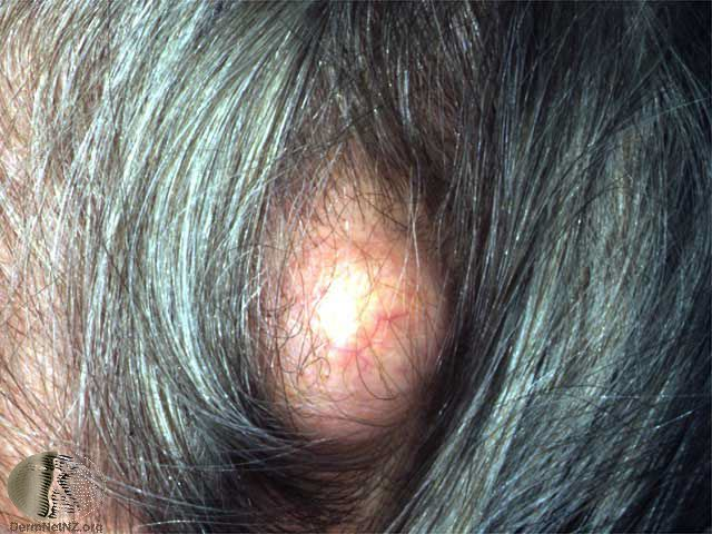 Pilar cyst on the scalp