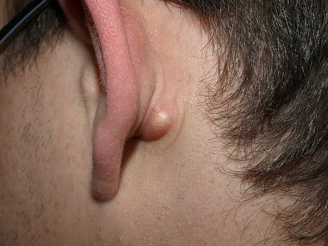 Sebaceous cyst behind the ear