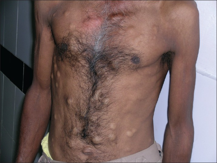 Steatocystoma multiplex on the chest and abdomen
