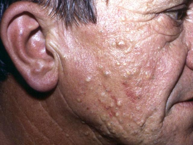 Sebaceous cysts on the face