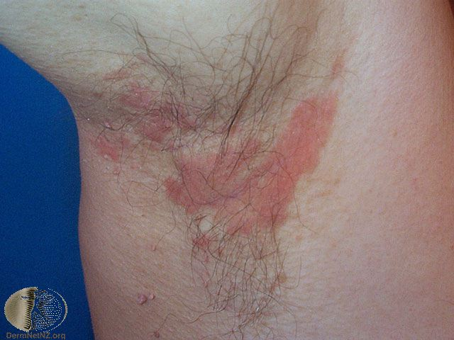 Seborrheic dermatitis in the armpit