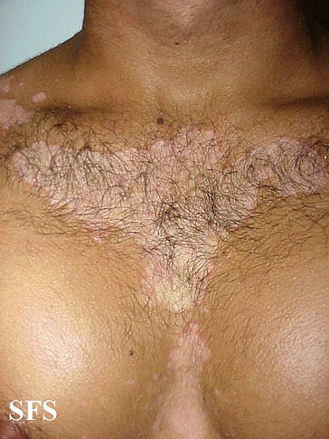 Seborrheic dermatitis on the chest