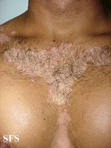 Seborrheic dermatitis on the chest