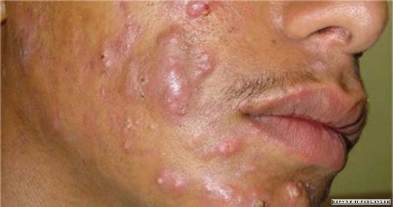 Acne conglobata on the face
