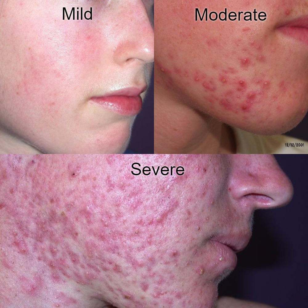 Acne types: mild, moderate, severe
