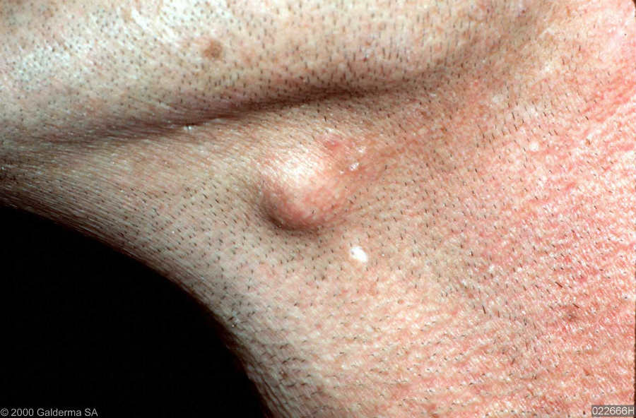An epidermoid cyst on the left side of the throat