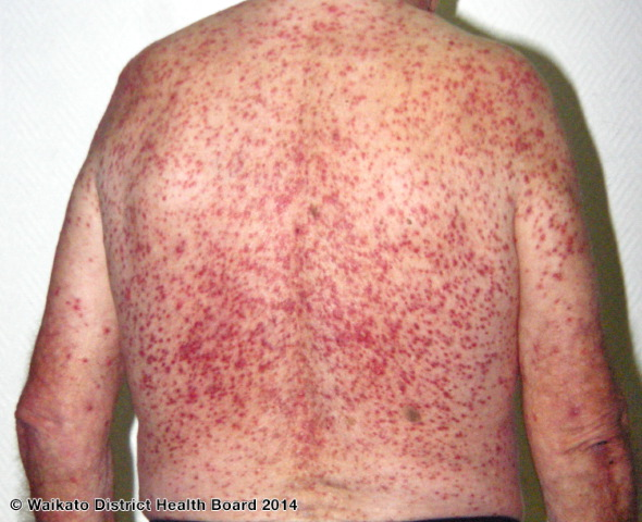 Severe hormonal acne on the back