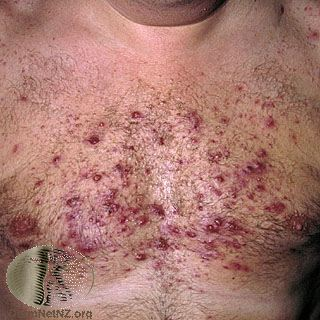 Hormonal cystic acne on the chest