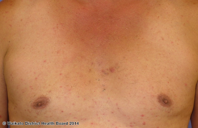 Mild steroid acne on the chest