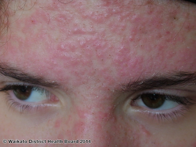 Hormonal steroid acne on the forehead