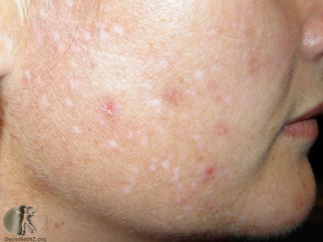 Mild adult acne