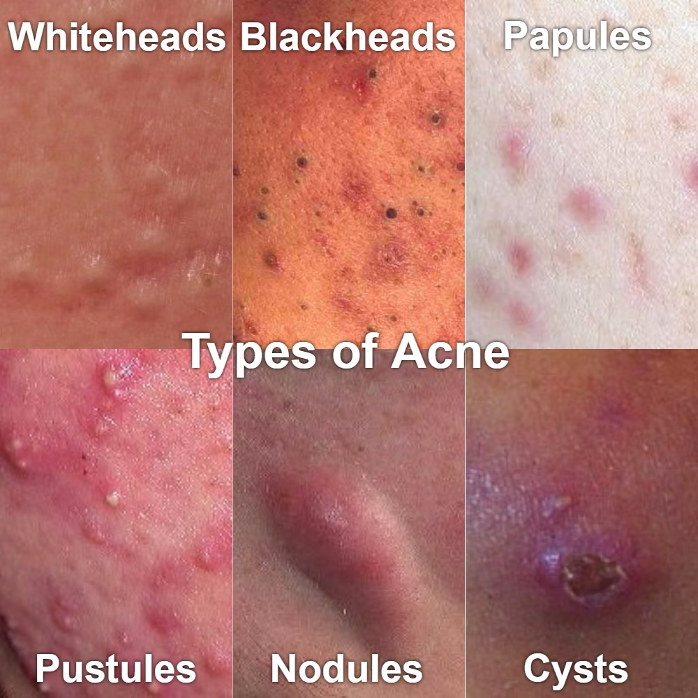 What type of acne do you have?