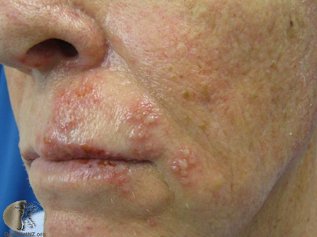 Mild shingles on the face