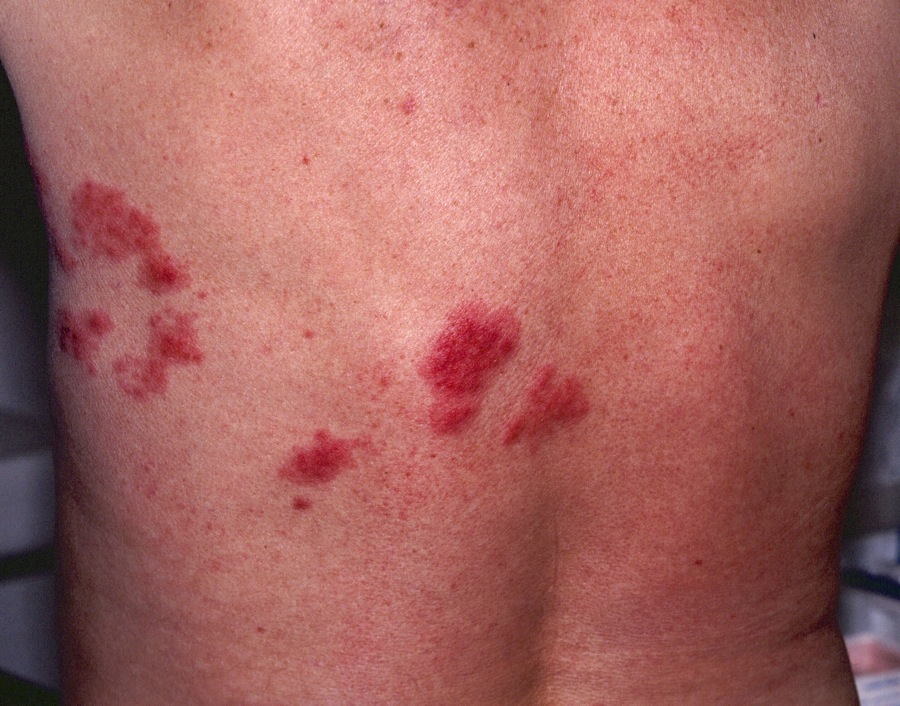 Shingles rash in an early stage